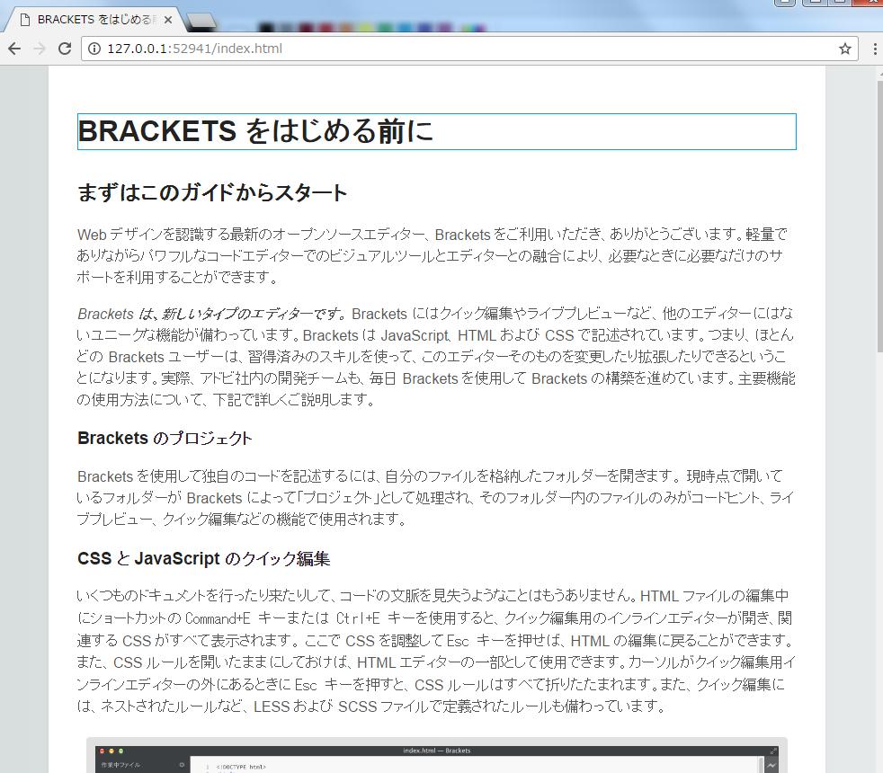 brackets-9